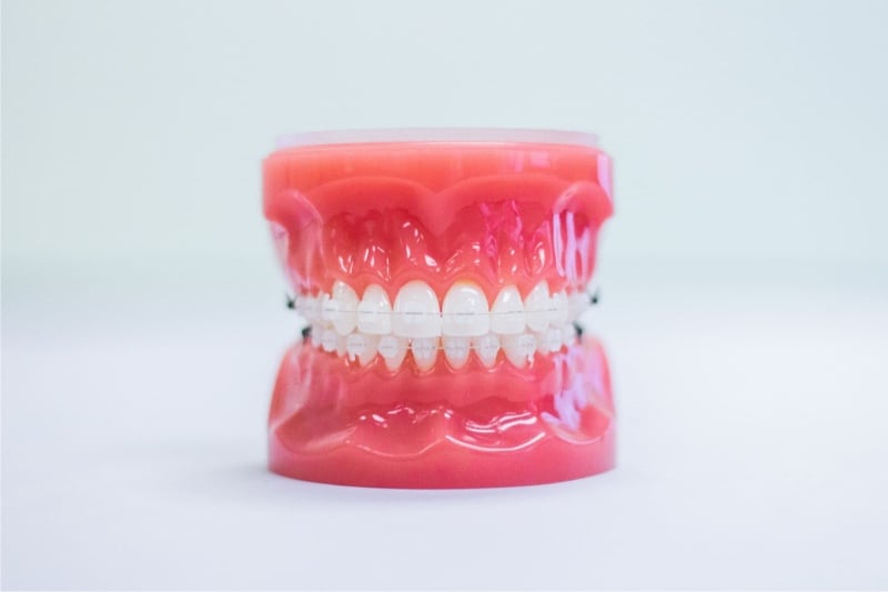 clear braces on plastic model
